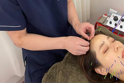 立体造形顔美顔鍼(ベーシックコース)