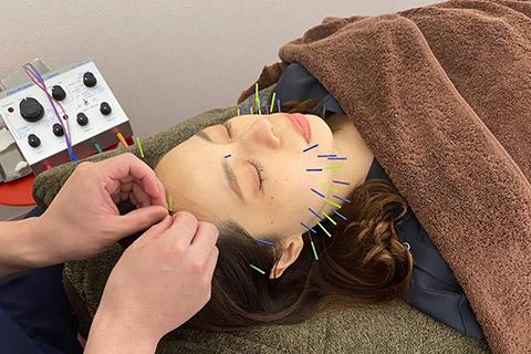 立体造形顔美顔鍼(プラチナコース)